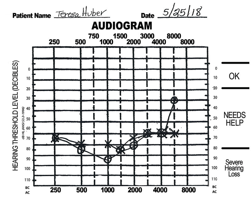 Audio gram showing hearing loss